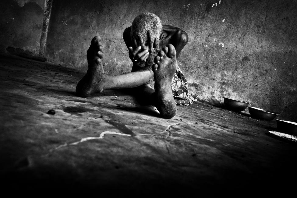 """Fotografía de Antonio Aragón Renuncio para Nthephoto. Les Sorcières… las brujas… las devoradoras de almas… …en Burkina Faso. En medio de la sabana profunda. Lejos de todo. Cerca de nada…  Todavía hoy, en la cultura tribal de los Mossi, muchas mujeres son acusadas de """"brujas"""" por sus vecinos, sencillamente por creer que son las culpables de alguna desgracia que acontece en la aldea. Sin sentido. Culpadas por desconocimiento, por tener alguna discapacidad, por superstición, o simple venganza… Las llegan a buscar a sus casas… con sed de sangre… con ansias de matarlas… en medio de la sabana. Muchas mueren a manos de sus familias, otras se suicidan antes de ser protagonistas de una orgia de maldad, sufrimiento y sangre. Las más afortunadas consiguen escapar de la """"justicia"""" social y de su nada prometedor futuro. A hurtadillas… furtivas… desahuciadas, destruidas, malditas… solas.  Y hasta acá llegan, al poblado de las """"brujas"""". Hacinadas. Durmiendo y comiendo -gracias a la caridad de algún corazón bondadoso- en el suelo. Con sus pocas pertenencias amontonadas a sus pies. Enfermas, ancianas, olvidadas, analfabetas, exiliadas, malditas… solas.  Otro infierno para mujeres. Siempre mujeres, siempre malditas…   …siempre solas."""