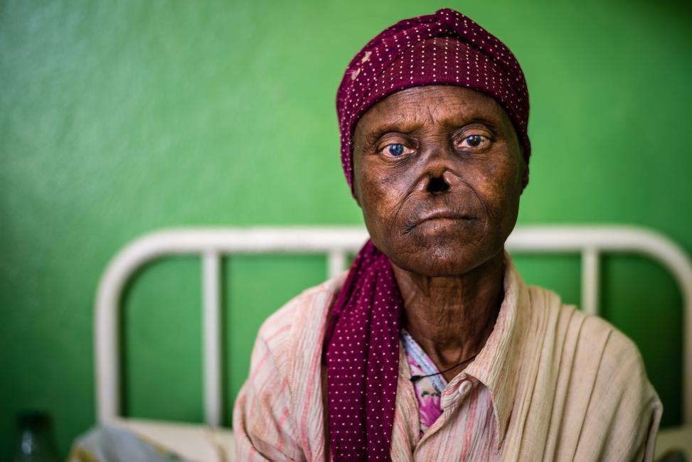 Fotografía de Ignacio Marin para Nthephoto. Leproseria de Gambo, Etiopia
